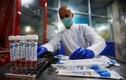 Sốc: Virus corona vẫn sống sót khi được xử lý ở 60 độ C