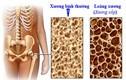 Dấu hiệu và cách khắc phục chứng loãng xương