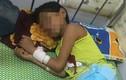 Uống 1 lít rượu thách đố, bé trai 11 tuổi ở Nghệ An hôn mê sâu