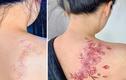 Mê mẩn hình xăm che sẹo của cô gái Việt gây sốt báo ngoại