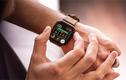 Apple còn gì để nâng cấp trên apple watch series 5?