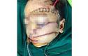 Bé trai 5 tuổi bị cha chém nát mặt, nguy kịch
