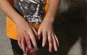 Thông tin trái ngược vụ bé trai bị cha đánh dập tay ở TP.HCM