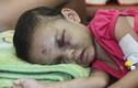 Những vết thương kinh hoàng trên người bé gái bị cha mẹ hành hạ