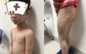 Hà Nội: Nghi vấn bố đánh con đẻ 7 tuổi bầm tím