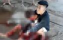 Nam thanh niên đang đi trên đường bất ngờ bị đâm nhập viện