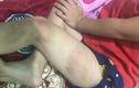 Cha bạo hành con 5 tuổi tím người ở Bình Dương: Mẹ cố tình bao che... gây phẫn nộ!