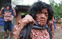 Tâm sự nhói lòng của người đàn ông có hàng ngàn khối u trên người