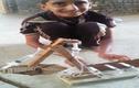 Cậu bé chế tạo máy xúc hoạt động bằng kim tiêm