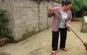 Người phụ nữ nuốt 250 con thằn lằn sống để chữa bệnh