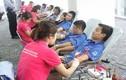 Lợi ích bất ngờ của việc hiến máu có thể bạn chưa biết