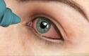 Cách sơ cứu khi trẻ bị vật nhọn đâm vào mắt
