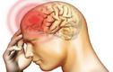 Dấu hiệu nhận biết sớm viêm não mô cầu