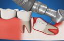 Tường tận cách loại bỏ răng khôn mọc lệch