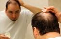 Cách chữa hói đầu ở nam giới hiệu quả nhất