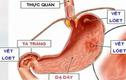 Video: Thói quen ăn uống gây ung thư dạ dày bạn cần bỏ ngay