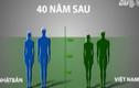 Làm gì để người Việt không lùn nhất châu Á?