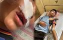 Nam sinh bị bạn học cùng trường đánh nhập viện ở Hà Nội
