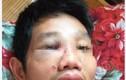 Mâu thuẫn tại chốt kiểm dịch, một cán bộ bị đánh nhập viện
