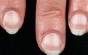 Dấu hiệu bệnh nguy hiểm thể hiện qua móng tay