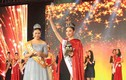 Hoa hậu Hoàn cầu Trung Quốc 2015 bị chê răng hô