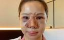 Sốc với gương mặt biến dạng sau dao kéo của Lưu Đê Ly