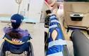 Nhật Kim Anh bị ngã rách dây chằng, nhìn nẹp chân mà xót