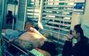 Một thanh niên TP HCM bị chém lìa bàn tay trong đêm