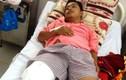 Cầu cứu Bộ trưởng Y tế khi bị cưa chân do BS chẩn đoán nhầm