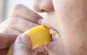 Mẹo hay cuộc sống: Cách tự nhiên loại bỏ mảng ố trên răng