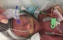 Sự hồi sinh kỳ diệu của bé gái sinh non