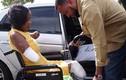 Kinh hãi người phụ nữ phải cắt cụt chân tay vì biến chứng khi mang thai