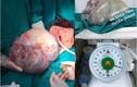Phẫu thuật thành công khối u buồng trứng khổng lồ nặng 6,2kg