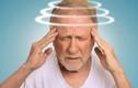 Dấu hiệu sớm của tai biến mạch máu não ai cũng cần biết