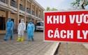Ca nhiễm Covid-19 thứ 21 ở Việt Nam ngồi gần bệnh nhân thứ 17 Nguyễn Hồng Nhung