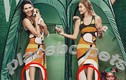Kendall Jenner mất đầu gối vì photoshop