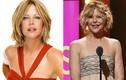 Phát hoảng với mặt cứng đờ, biến dạng của sao Hollywood vì Botox