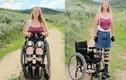 Chuyện lạ hôm nay: Lạ đời người phụ nữ thích bị tàn tật