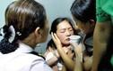 Uống quá nhiều thuốc tránh thai, cô gái trẻ nhồi máu não suýt chết