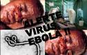 Tiết lộ bất ngờ về tên gọi virus Ebola