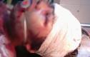 Bé gái 14 tuổi bị đánh vô cùng dã man trong đêm