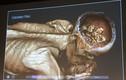 Bí mật xác ướp người đàn ông tóc vàng đặc biệt nhất thế giới