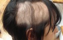 Thích nhổ tóc, nhổ lông vùng kín, dấu hiệu bệnh tâm thần