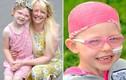 Ngắm em bé thiên thần chiến thắng ung thư như phép lạ