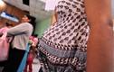 Thai phụ nhiễm virus Zika ăn não người có phải bỏ thai?