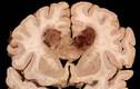 11 bệnh ung thư dễ bị di truyền từ người thân
