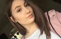 Cô gái 18 tuổi sưng húp mặt, mất thị lực vì nhuộm tóc