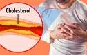 7 dấu hiệu tắc động mạch cực nguy hiểm thường bị bỏ qua