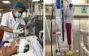 Kỳ tích cứu sống bệnh nhân 18 tuổi đột quỵ não nặng, hôn mê sâu