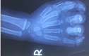 Bé trai 23 tháng tuổi nát cả bàn tay do bị cuốn vào dây coroa máy rửa xe